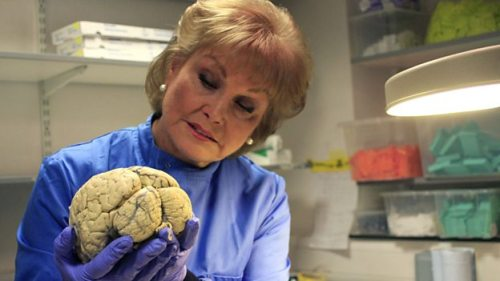 AR & Dementia